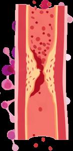 Benefícios da berinjela à saúde: diminuição do colesterol